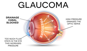 GLAUCOMA-diagram